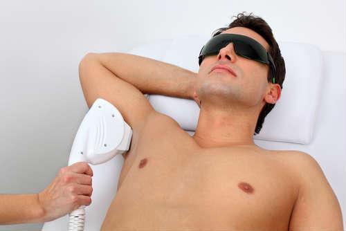 depilacion laser preguntas