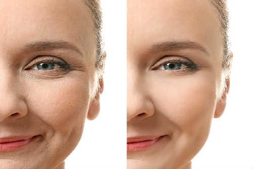 tratamientos flacidez facial ellanse