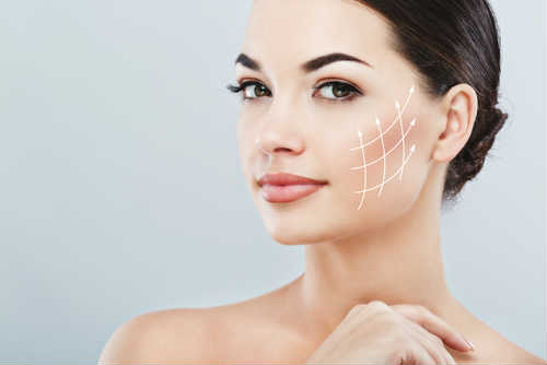 tratamientos flacidez facial radiesse
