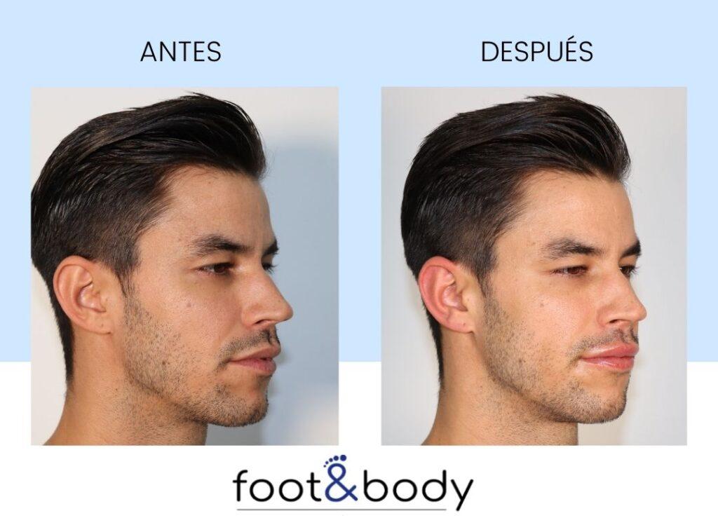 relleno de labios antes y depues