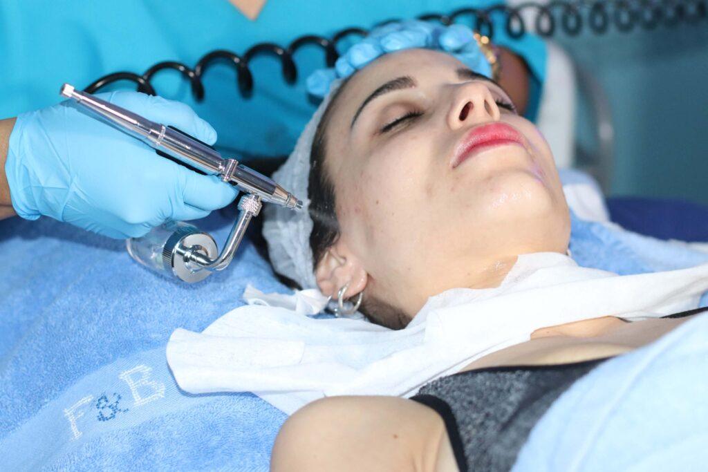 oxigenacion facial madrid